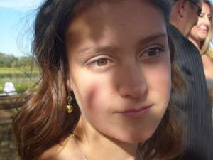 Cefalea crónica diaria en adolescentes