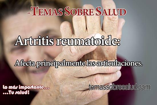 ¿Cómo se diagnostica la artritis reumatoide? - inflamación articular