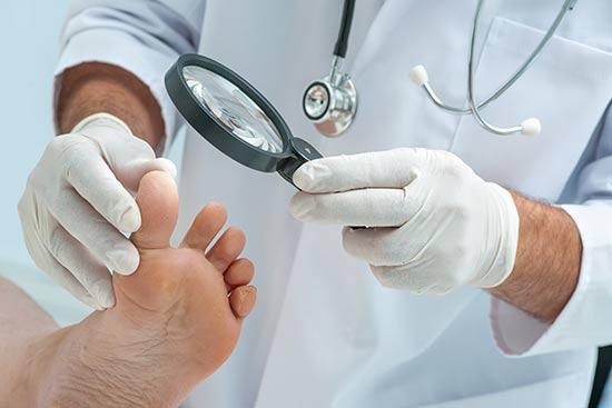 La neuropatía diabética puede causar una amputación