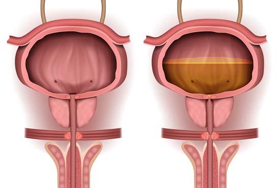 vejiga - Infección crónica del tracto urinario