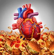 Triglicéridos - infarto