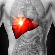 Cáncer de hígado nutrición