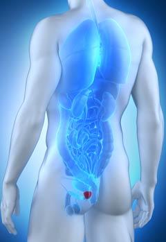 vejiga - problemas en la próstata