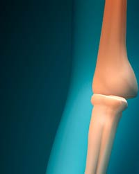 La osteoporosis es una enfermedad silenciosa