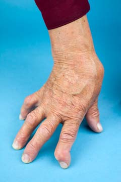 dolor de la osteoartritis