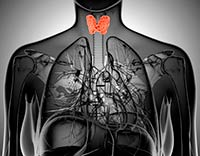 Cáncer de tiroides tiroiditis de Hashimoto