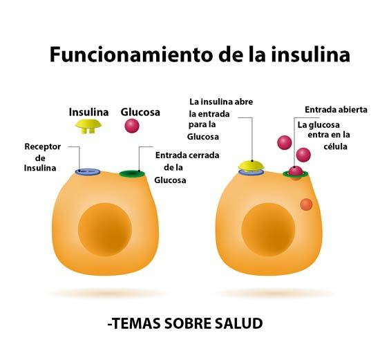 ¿Cuales son las Señales de Advertencia de la Diabetes tipo 1?