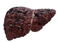 Tratamiento del cáncer de hígado