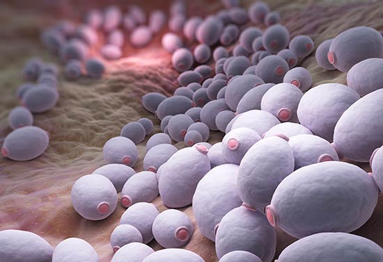 Infecciones de vejiga - pH alcalino