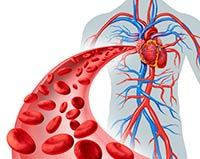 triglicéridos - ataque al corazón