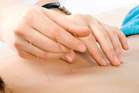 ciática Fortalecer los músculos de la base abdominal