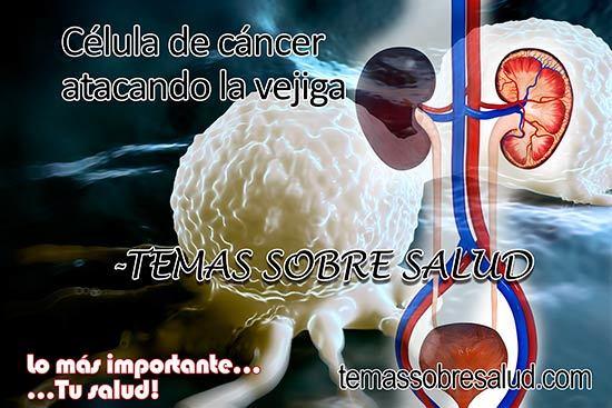cáncer de vejiga