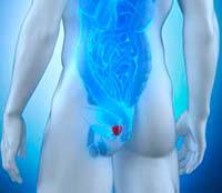 Nutrientes que fortalecen la glándula prostática