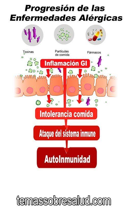 Enfermedades Alérgicas