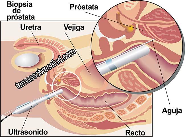 Prevenir El Cáncer de Próstata Incapacidad para orinar