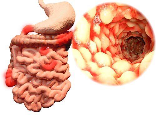magnesio para potenciar la salud Tracto digestivo
