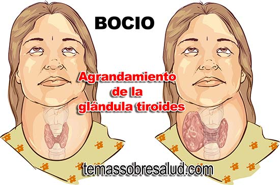 Tiroides Hipertiroidismo