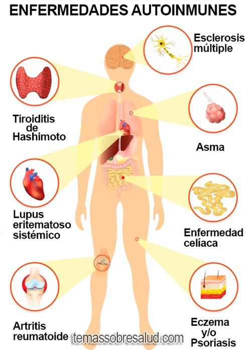 Trastornos Autoinmunes