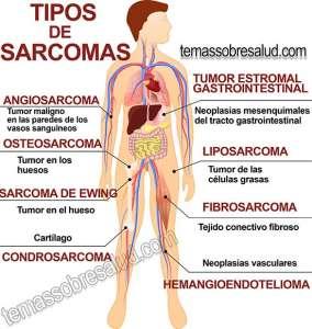 Cómo prevenir el cáncer de sarcoma