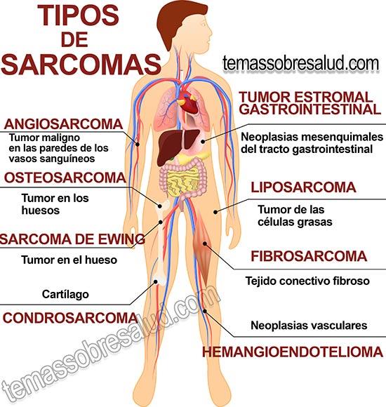 ¿Qué tan similares son los tumores benignos y malignos?