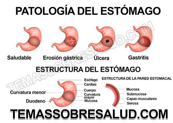 Principales síntomas debido a tener ácido estomacal bajo Reflujo ácido