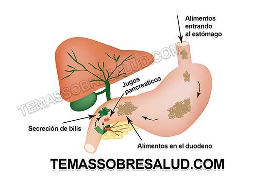 Sufrir cualquiera de las enfermedades inflamatorias intestinales predispone a padecer cáncer de colon.