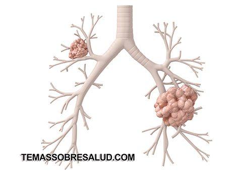La quimioterapia generalmente es el pilar del tratamiento para la recurrencia del cáncer de pulmón tipo de cáncer