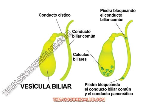 Conexión entre las Hormonas y la Vesícula Biliar hígado