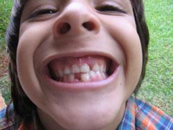 los pésimos hábitos con los dientes
