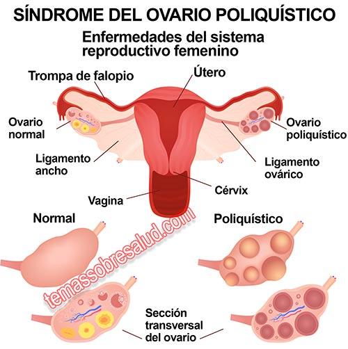El Síndrome de ovario poliquístico y las alteraciones del período menstrual