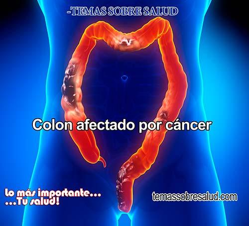 síntomas que pueden indicar la existencia de cáncer de colon