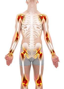 ¿Cómo se diagnostica la artritis reumatoide? - artrosis