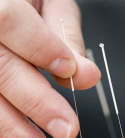 La acupuntura ayuda sorprendente para el esperm
