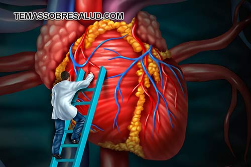 los ataques al corazón pueden iniciarse lentamente y solamente causar dolor leve o malestar