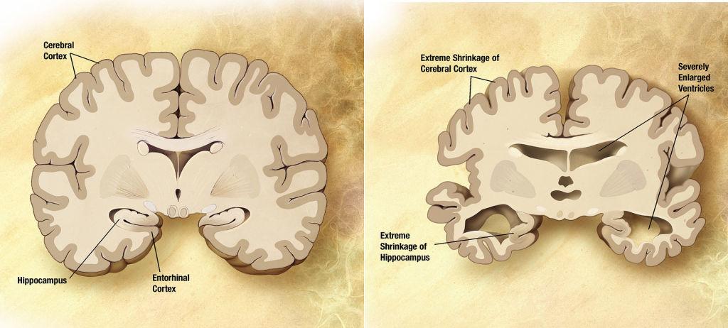 Aceite de coco - demencia