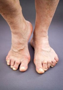 ¿Cómo se diagnostica la artritis reumatoide? - Antecedentes familiares