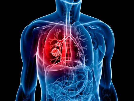 El tipo más común de cáncer de pulmón en las mujeres es el adenocarcinoma