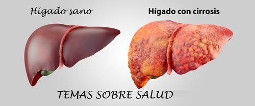 Dolor abdominal Causas y factores de riesgo del hígado graso