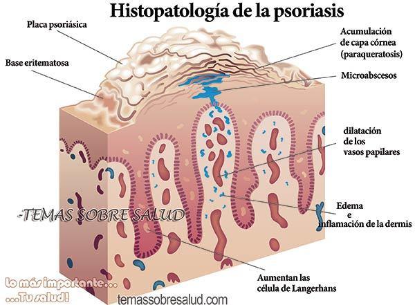 El óxido del zinc a la psoriasis