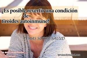 tiroides autoinmune