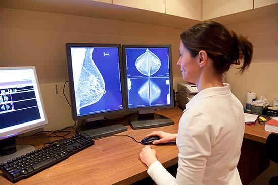 problemas en los senos femeninos - Mamografías anormales