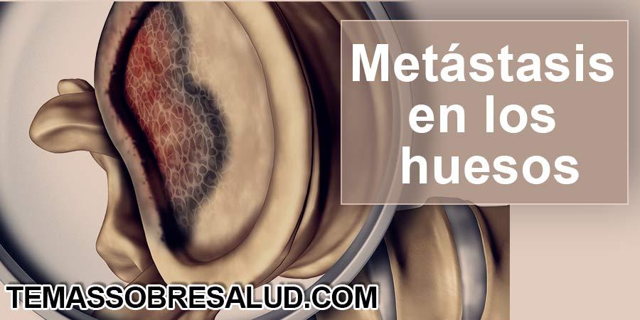 Metástasis en los huesos - oncólogo