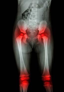 el cáncer de próstata se propagó a los síntomas de la columna vertebral