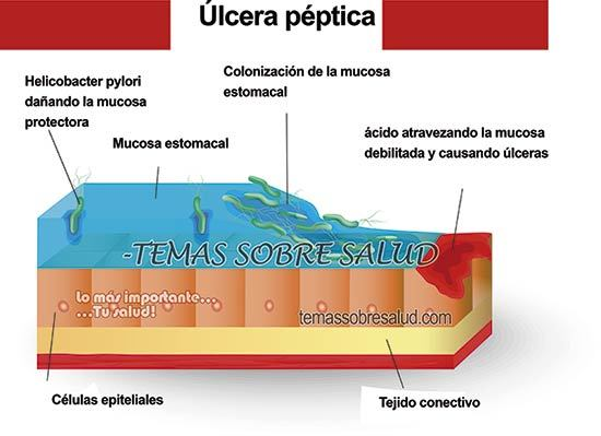 Úlcera péptica - Principales causas para tener el ácido estomacal bajo