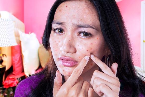 El Déficit de zinc contribuye al desarrollo del acné