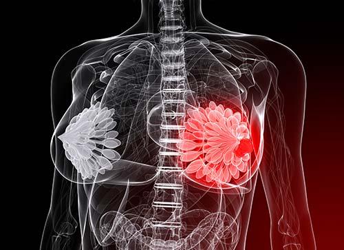 cánceres más letales para las mujeres