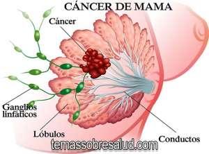 mamografías regularmente para detectar tumores en las mamas