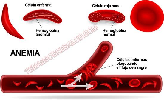 Déficit de cobre Anemia