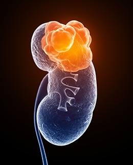 factores de riesgo del cáncer de riñón