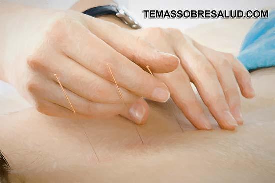 acupuntura para tratar el dolor